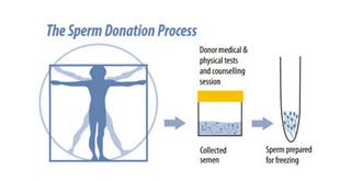 The Sperm Donation Process